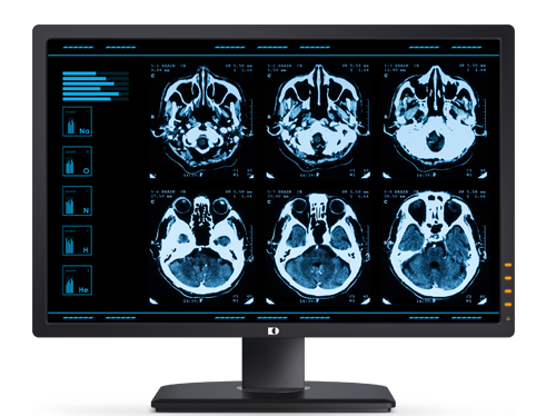 medical image solution precise segmentation contouring of organs and tissues