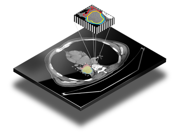 medical image segmentation and counturing components